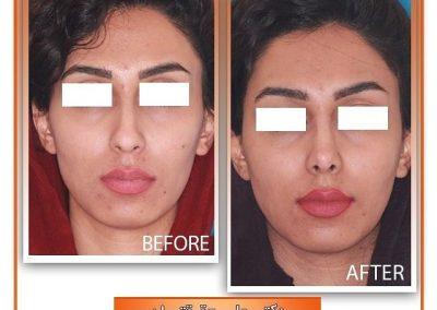 جراحی زیبایی بینی با نوک گوشتی نمونه کار دکتر حقیقتیان