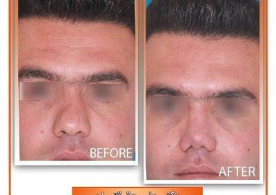 نمونه جراحی بینی مردانه در شیراز