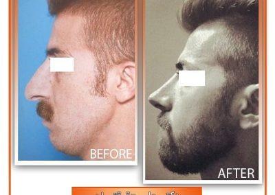 نمونه جراحی زیبایی بینی مردانه در شیراز