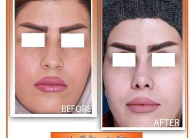 جراحی بینی گوشتی در شیراز نمونه دکتر علی حقیقتیان
