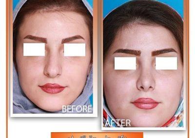 جراحی بینی کج و گوشتی توسط دکتر علی حقیقتیان