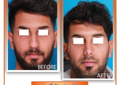 عمل بینی مردانه در شیراز دکتر علی حقیقتیان