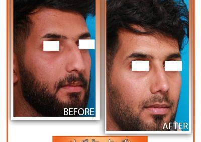 جراحی بینی آقای جوان توسط دکتر شیرازی