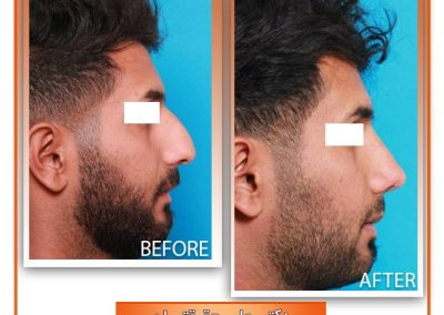 نمونه جراحی زیبایی بینی آقایان در شیراز