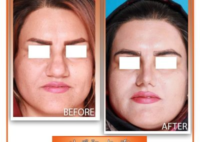 نمونه جراحی بینی گوشتی در شیراز