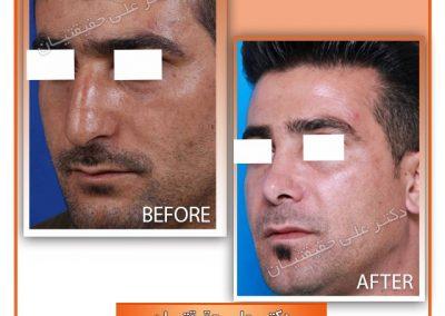 جراحی بینی استخوانی مردانه در شیراز دکتر حقیقتیان