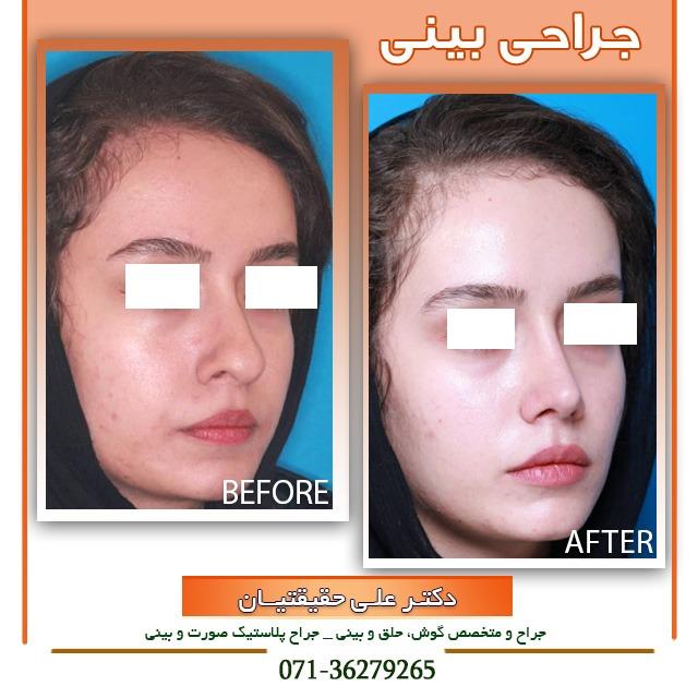 نمونه جراحی بینی گوشتی با نوک افتاده در شیراز