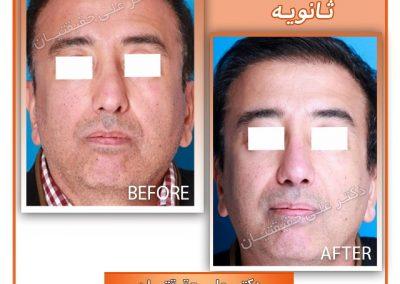جراح بینی ترمیمی در شیراز دکتر حقیقتیان