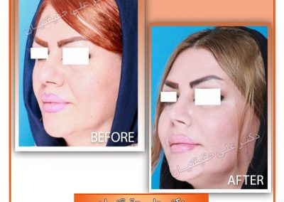 قبل و بعد از جراحی بینی گوشتی در شیراز