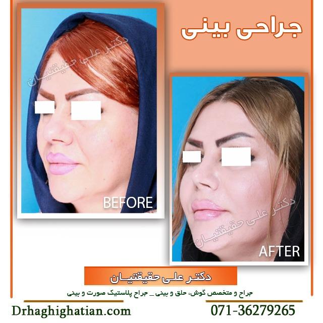 نمونه جراحی بینی گوشتی