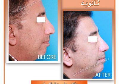 جراحی بینی ترمیمی آقایان دکتر حقیقتیان در شیراز