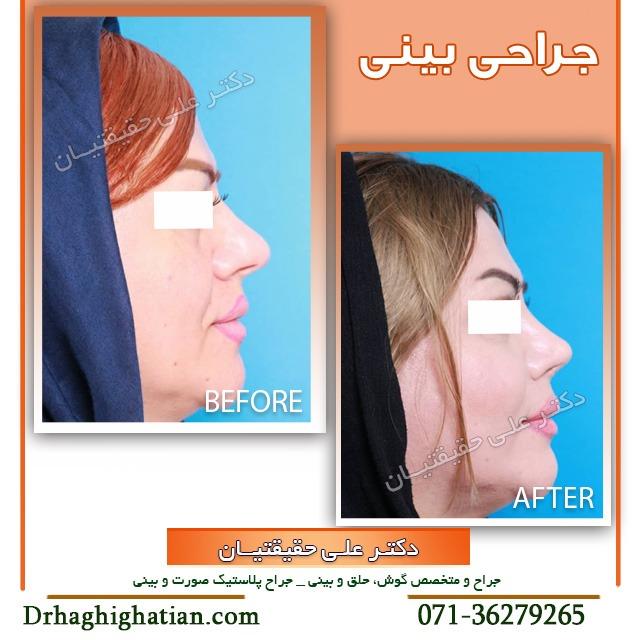بینی طبیعی بعد از جراحی در شیراز