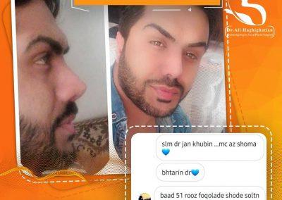 عمل زیبایی بینی آقایان در شیراز دکتر حقیقتیان