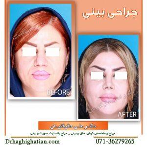 بینی با نوک بسیار گوشتی جراحی در شیراز