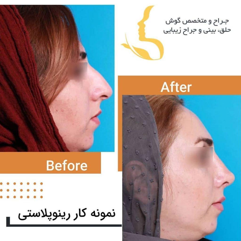 رفع قوز زیاد بینی توسط دکتر حقیقتیان جراح بینی شیراز