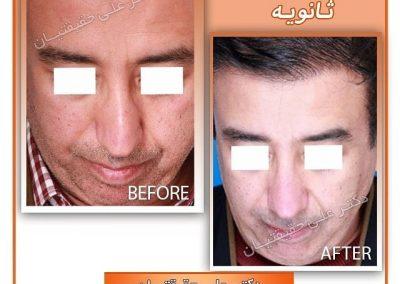 رفع کجی بینی در جراحی ترمیم بینی