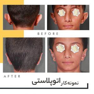 جراحی زیبایی گوش در شیراز