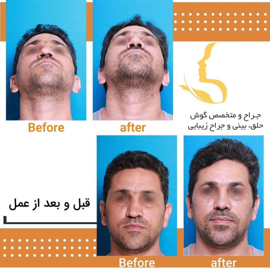 قبل و بعد از عمل آقایان دکتر حقیقتیان در شیراز