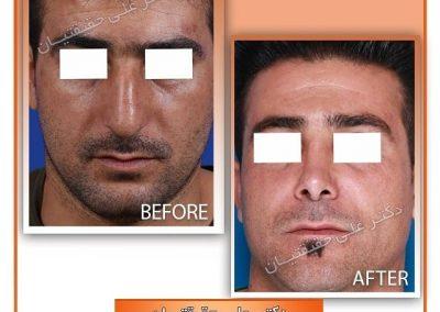 جراحی مدل طبیعی بینی آقایان در شیراز