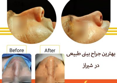 جراحی همزمان زیبایی و انحراف دکتر حقیقتیان شیراز