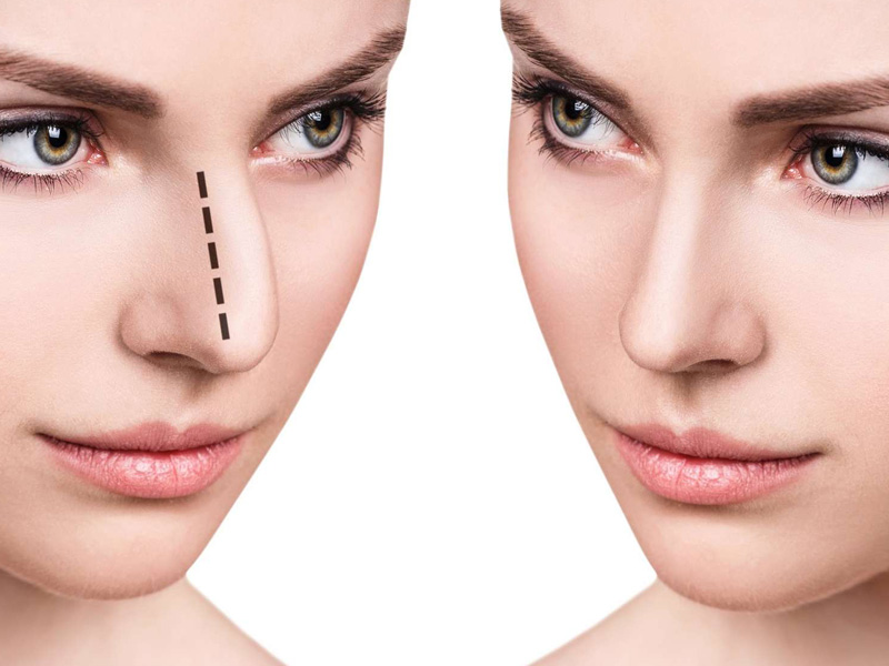 بازگشت به فعالیت روزمره بعد از جراحی بینی