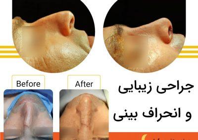 جراحی همزمان زیبایی و انحراف در شیراز