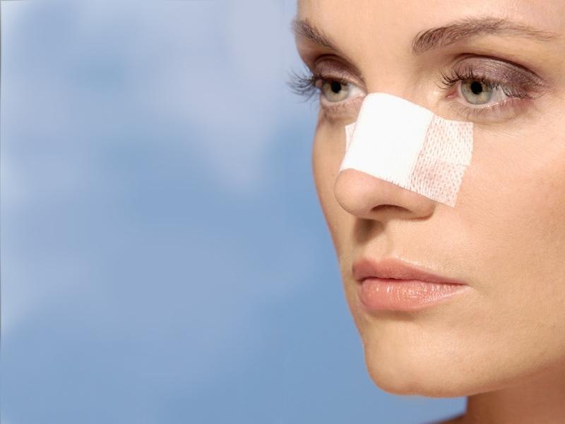 چسب زدن صحیح بعد از جراحی زیبایی بینی