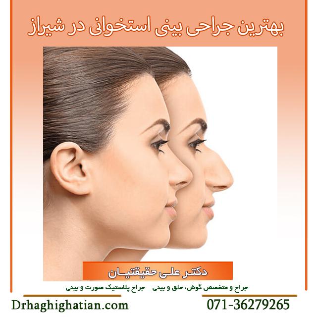 بهترین جراحی بینی استخوانی در شیراز