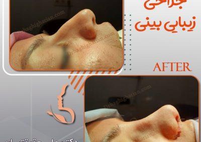 بلافاصله بعد از جراحی بینی در شیراز