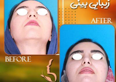 جراحی زیبایی بینی استخوانی قبل و بعد