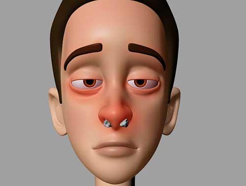 درمان کیپ شدن بینی